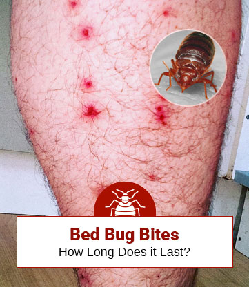 How Long Does Bed Bug Bite Last? (A Useful Guide)