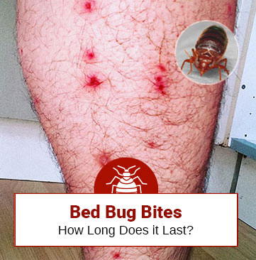 How Long Does Bed Bug Bite Last