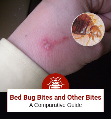 Difference Between Bed Bug Bites And Other Bites (Comparative Guide)